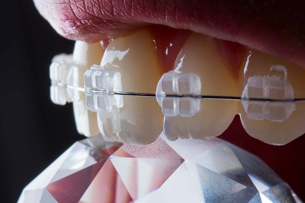 Things to know before dental braces