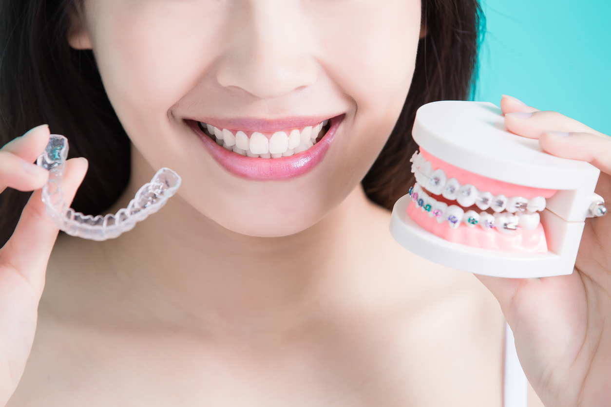 Invisalign or Traditional Braces? A Comprehensive Pros and Cons Guide