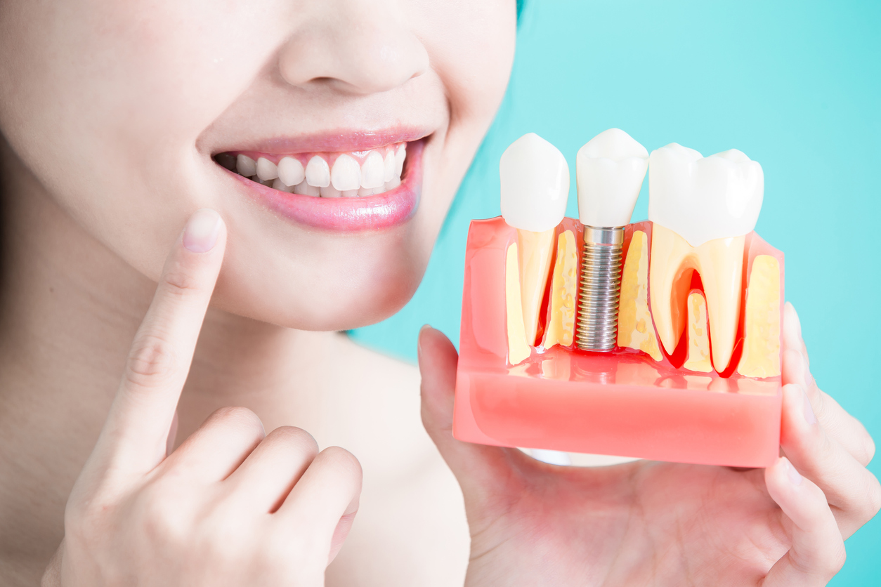 Dental Implants vs. Dental Bridges Which One is Right For You?