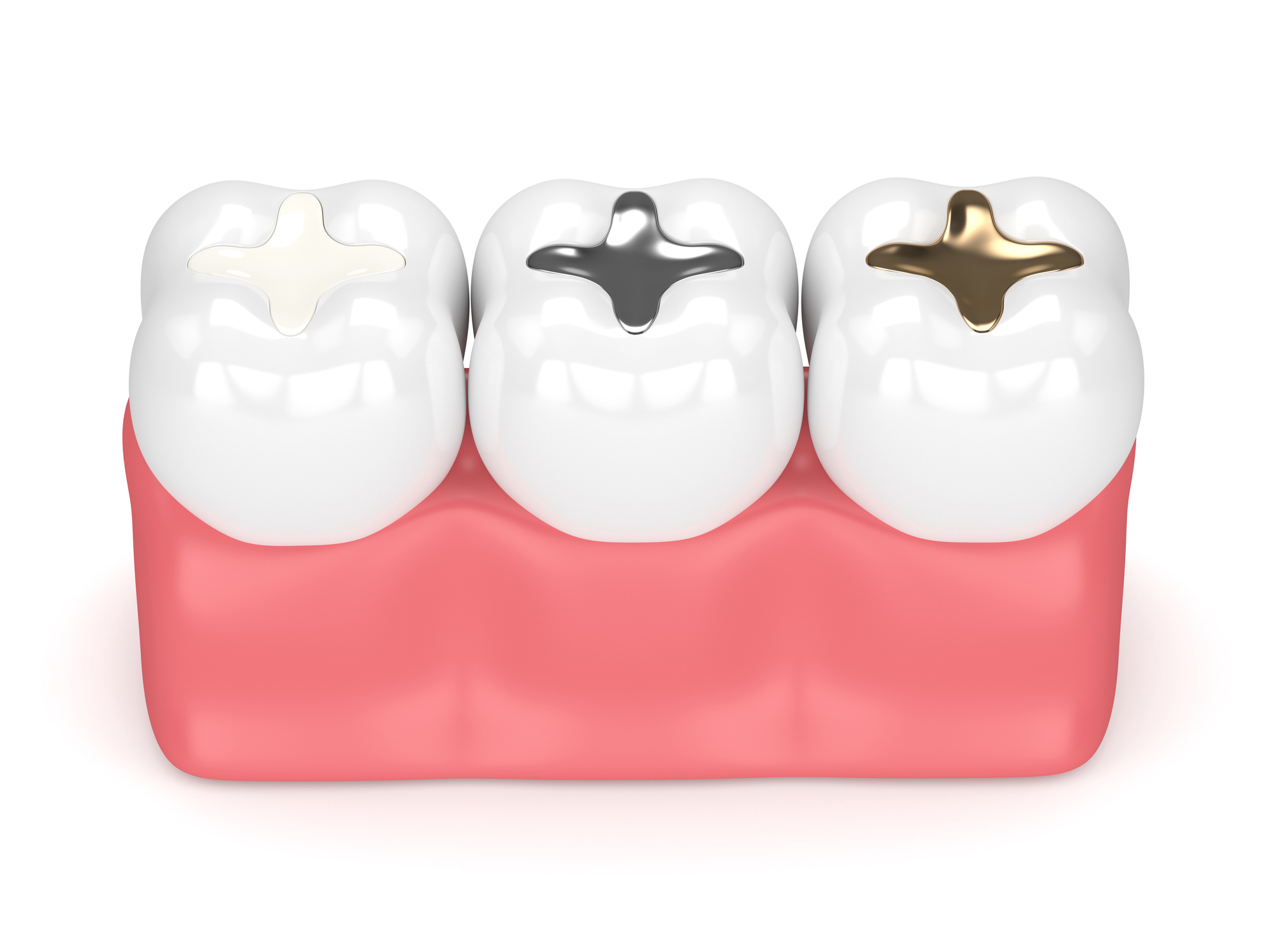 What is the Difference Between Fillings, Inlays, and Onlays?